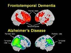 Stages of picks disease frontotemporal dementia on pinterest