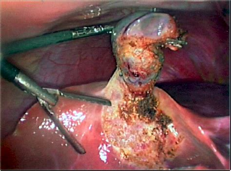 Liver Detox Years After Gallbladder Removal by Gallstones Removal Without Surgery Gallstones Removed