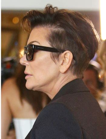 celebrity women with thinning hair is kris jenner suffering from female pattern hair loss