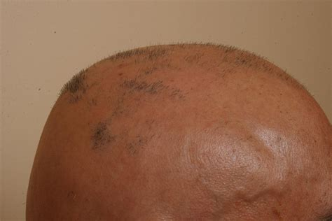 african american salons in philadelphia alopecia suffers hair loss treatment in philadelphia hair fall grow hair
