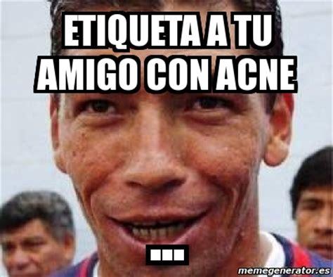 Pimple Meme - meme personalizado etiqueta a tu amigo con acne