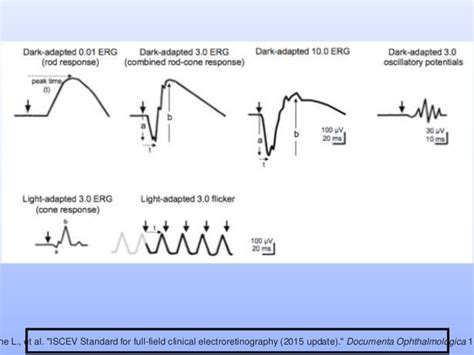 pattern erg iscev electrophysiology erg and eog simplified