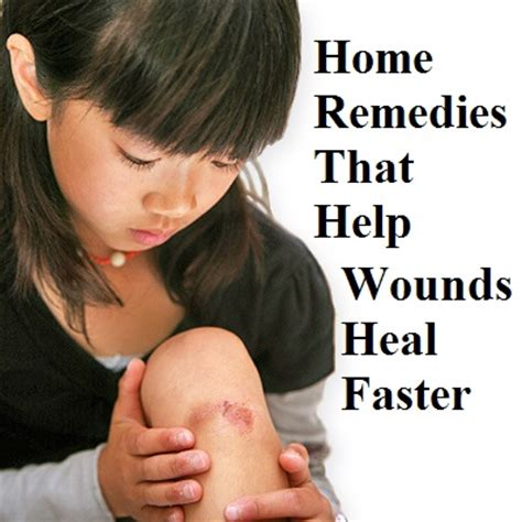 7 Remedies To Help A Wound Heal Quicker home remedies that help wounds heal faster the prepared page