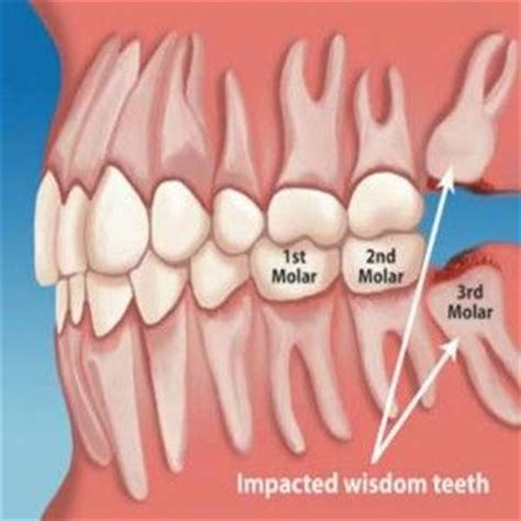 wonderful home remedies for wisdom tooth health