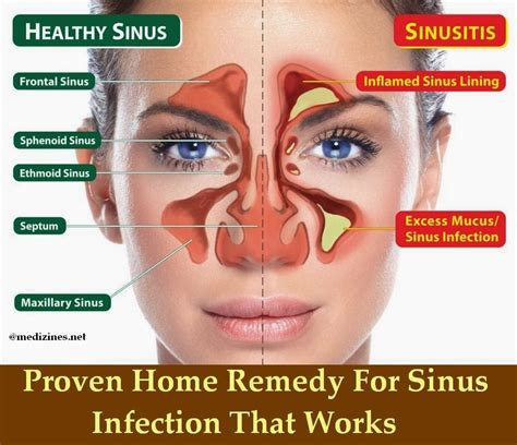 proven home remedy for sinus infection that works