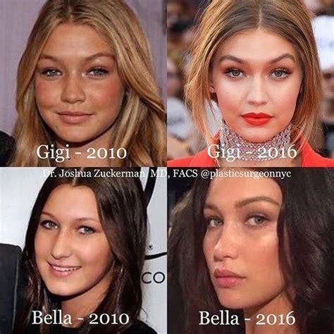 gigi hadid surgery both gigi and bella hadid before and after plastic surgery