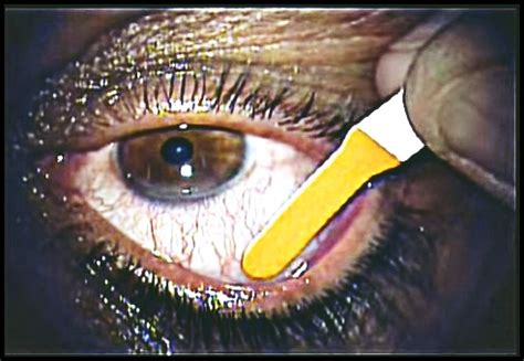 scratched cornea treatment symptoms healing time