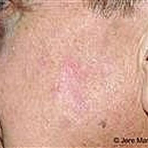 when a tiny patch of scaly skin is the first sign of how to treat dry scaly skin spots healthy living