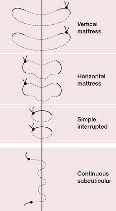 vertical pattern meaning vertical mattress sutures definition of vertical