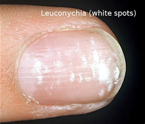 white spots on nail beds white spots on nail beds 28 images if you have white