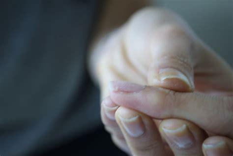 broken nail bed fix a broken nail beautylish