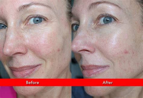does the illumask for acne really work does the illumask really work newhairstylesformen2014 com