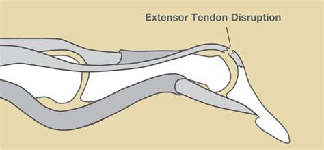 diagram of mallet mallet finger baseball finger