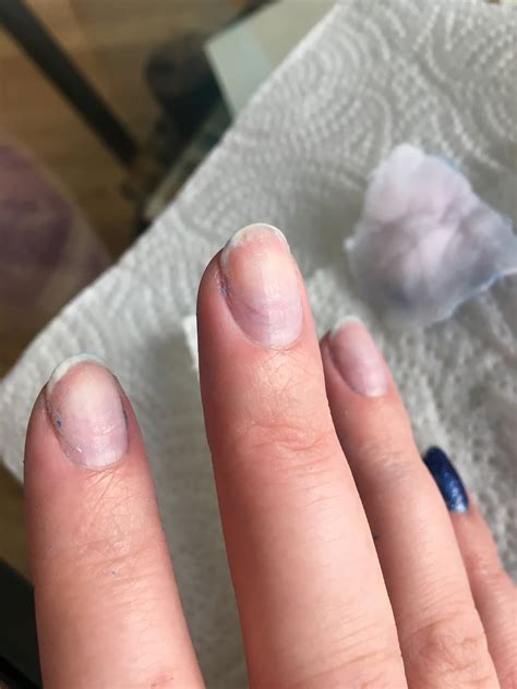 Acrylic Nail by Gels Vs Acrylics What S The Difference Between