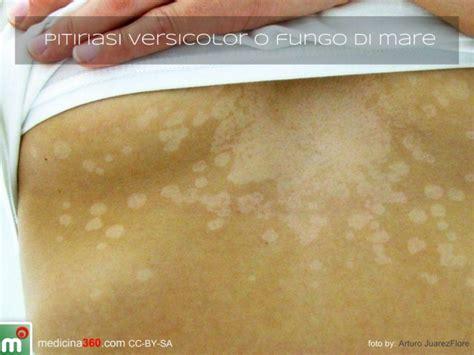 come curare un intossicazione alimentare eczema psoriasi e orticaria significato emozionale e