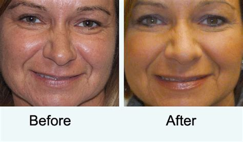 laser wrinkle removal before and after allure laser treatment laser wrinkle reduction treatment