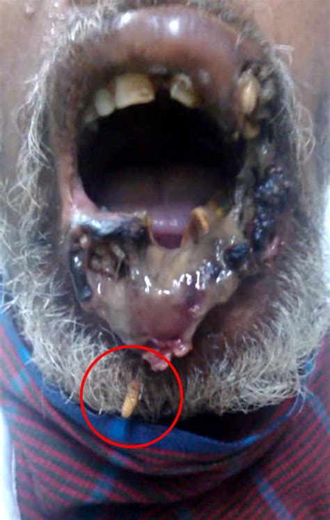 maggots in with maggot infested is the most horrific daily