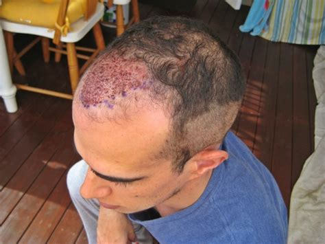 sting hair transplant hair transplant surgery in india
