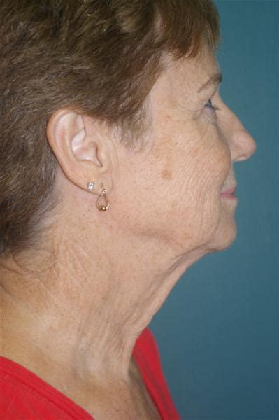 lasers intense pulsed light chemical peels dr peter