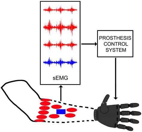 pattern recognition quality control frontiers control capabilities of myoelectric robotic