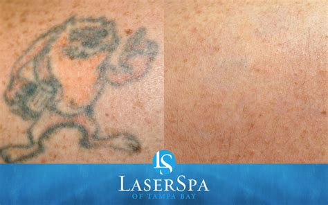 after tattoo removal laser removal laserspa of ta bay