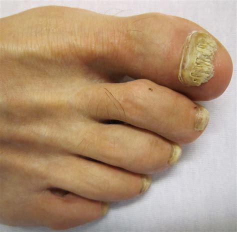 nail infection fungal nail infection causes symptoms treatment fungal nail infection
