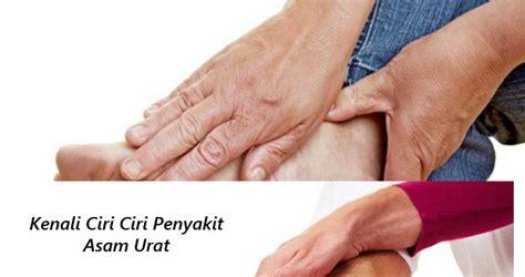 Jamu Kapsul Urid Acidasam Urat obat tradisional gout arthritis living essential