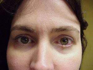 eyelid tumor eyelid tumor surgery nashville sherman aesthetic center sherman aesthetic center
