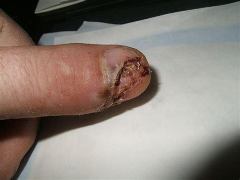 nail bed injury nail bed injury my thumb injury flickr photo sharing