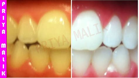 teeth whitening  home   minutes health flicks