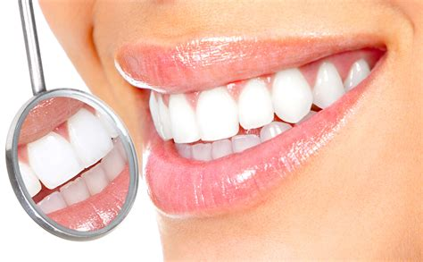 teeth whitening expressions dental blog