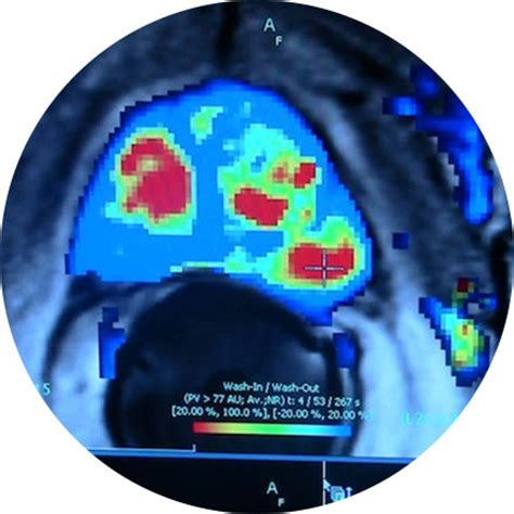 Garden State Radiology S Imaging Garden State Radiology Network