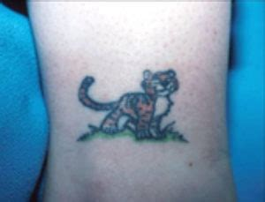 laser tattoo removal new orleans before after gallery poole dermatology the laser
