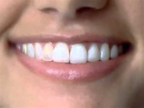 teeth whitening  crest  white intensive professional