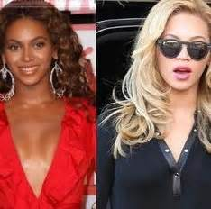 beyonce skin color who bleached their skin white