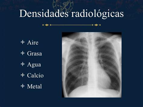 imagenes radiologicas pdf anatom 237 a del t 243 rax por radiograf 237 a simple