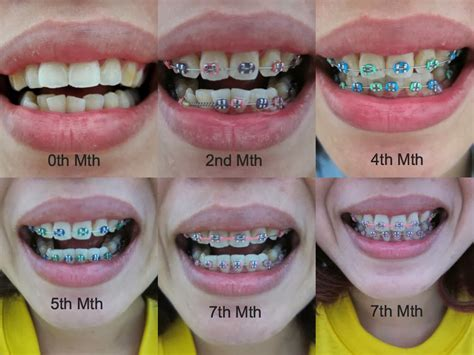 braces colors green surgery pics