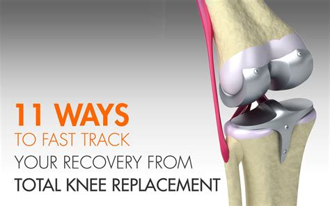 pin total knee replacement on pinterest