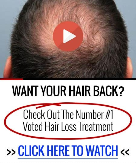 best hair loss treatment best hair loss treatment for men that actually works