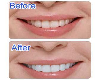 Berapa Pemutih Gigi jual pemutih gigi