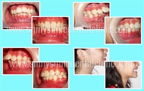 Veneer Pemutih Gigi smile gallery veneer gigi kawat gigi pemutih gigi