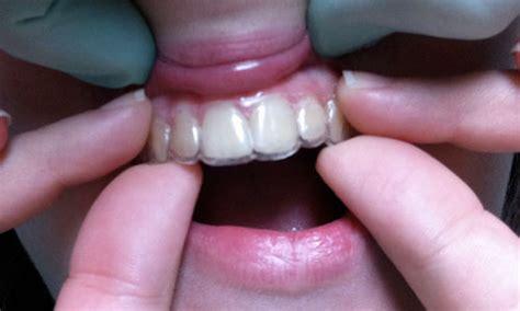 apparecchio mobile trasparente ortodonzia mobile e invisibile per malocclusioni dentarie