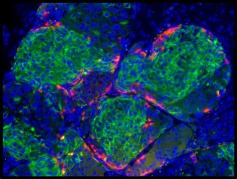 harvard s douglas melton creates functional insulin