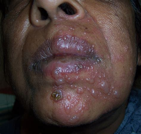 Find With Herpes Zoster Herpes داء المنطقة