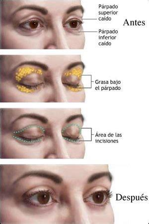 imagenes de ojos inflamados la blefaroplastia o cirug 237 a de los parpados vida salud