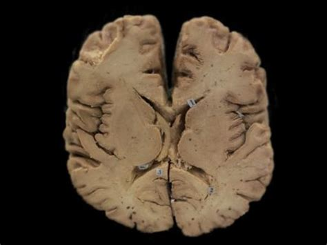 horizontal section of brain eye structure plastinated specimens plastinated specimens
