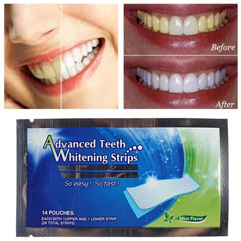 teeth whitening strips home dental bleaching whiter alex nld