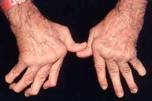 rheumatoid arthritis osteoarthritis and spinal arthritis cedars sinai
