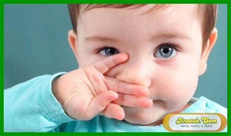Obat Herbal Sesak Nafas Pada Bayi agen obat batuk berdahak anak 1 tahun dari batuk sai