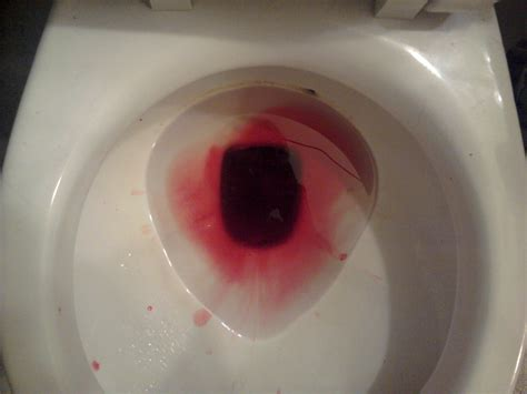Child Has Blood In Stool by Well That S Not Even More Disturbing I M A